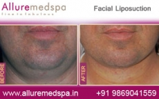 Face Liposuction Before After Photos