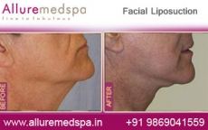 Face Lipo Before After Photos