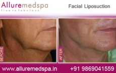 Facial Lipo Before After Photos
