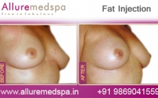 Fat Grafting Before After Photos in Mumbai, India