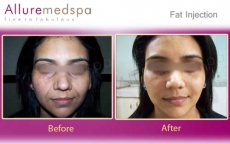 Fat Transfer Before & After Pictures in Mumbai, India