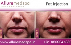 Fat Injection Before & After Photos in Mumbai, India