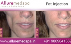 Fat Injections In Cheeks/Face Before And After Images in Mumbai, India