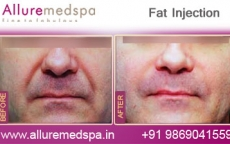 Fat Injection Face Before After Images in Mumbai, India