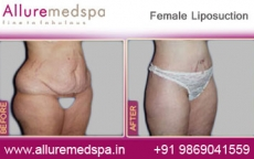 Female Liposuction Before After Photos