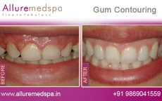 Gum Contouring Treatment Before After Photos