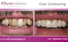 Dental Gum Contouring Treatment Before After Photos