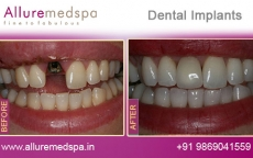 Dental Implants Treatment Before After Photos