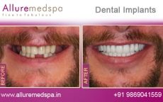Teeth Implants Treatment Before After Photos