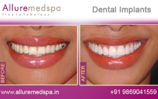Tooth Implants Treatment Before After Photos