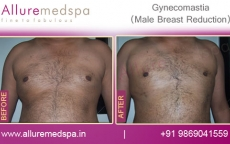 Male Breast Surgery Before and After Photos in Mumbai, India