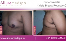 Before And After Male Breast Reduction Pictures in Mumbai, India