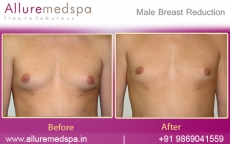 Gynaecomastia Treatment Before and After in Mumbai, India