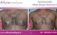 Gynecomastia Plastic Surgery Before and After Pictures in Mumbai, India