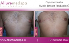 Men Breast Surgery Before & After Photos in Mumbai, India