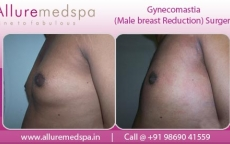 Gynecomastia Before And After Photo Gallery in Mumbai, India