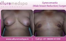 Male Breast Reduction Before And After Photo Gallery in Mumbai, India