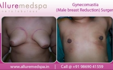 Bilateral Gynecomastia Surgery Before and After Photos in Mumbai, India