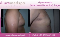 Man Breasts Before And After in Mumbai, India