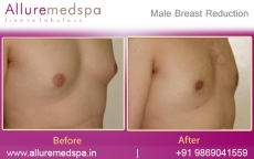 Gynecomastia Liposuction Surgery for Men in Mumbai, India