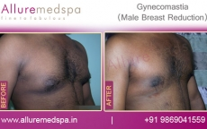 Gyno Surgery Before and After Pics in Mumbai, India