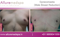 Male Chest Reduction Before And After Photos