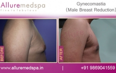 Gynecomastia Surgery Before And After Photos in Mumbai, India