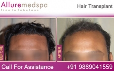 Hair Restoration FUT (Follicular Unit Micrografting) Before After Pictures in Mumbai, India