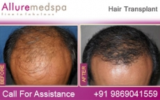 Bald Hair Loss Surgery | Hair Loss Before and After Pictures in Mumbai, India