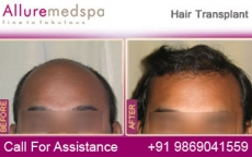 Hair Grafting Before And After Photos in Mumbai, India