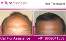 Hair Loss Restoration Before and After Images by Celebrity Cosmetic Surgeon Dr. Milan Doshi in Mumbai, India
