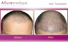 Hair Transplantation Before After Photos Images in Mumbai, India