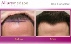 Hair Transplant, Hairline Surgery Before and After Photos in Mumbai, India- Allure medspa