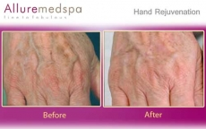 Hand Rejuvenation Treatment Before and After Pictures by Celebrity Cosmetic Surgeon Dr. Milan Doshi in Mumbai, India