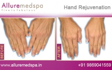 Hand Rejuvenation Before and After Images at Affordable Cost in Mumbai, India