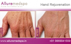Hand Rejuvenation Before and After Pictures at Transparent Price in Mumbai, India