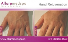 Hand Rejuvenation Before and After Gallery by Celebrity Cosmetic Surgeon Dr. Milan Doshi in Mumbai, India