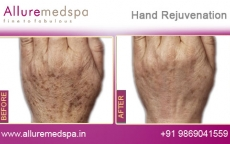 Hand Rejuvenation Treatment Before and After Photos at Affordable Price in Mumbai, India