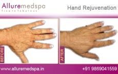 Hand Rejuvenation Treatment Before and After Images at Reasonable Cost in Mumbai, India