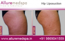 Waist Liposuction Before After Photos