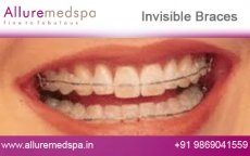 Invisalign Invisible Braces Before and After Images at Affordable Cost in Mumbai, India