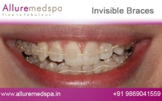Invisalign Invisible Braces Before and After Pictures at Transparent Price in Mumbai, India