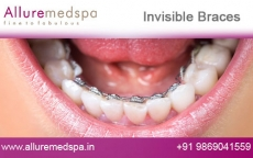 Invisalign Invisible Braces Before and After Gallery by Celebrity Cosmetic Surgeon Dr. Milan Doshi in Mumbai, India