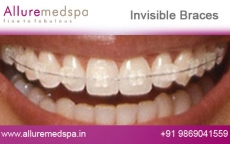 Lingual Dental Braces Before and After Photos at Affordable Price in Mumbai, India