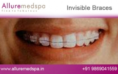 Lingual Dental Braces Before and After Images at Reasonable Cost in Mumbai, India