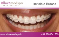 Lingual Dental Braces Before and After Pictures by Celebrity Cosmetic Surgeon Dr. Milan Doshi in Mumbai, India