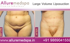 Mega Fat Removal Before After Photos