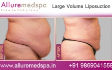 Mega Liposuction Before After Photos
