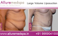 Large Volume Liposuction Before After Photos
