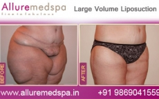 Large Volume Lipo Before After Photos